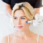Hydrafacial, o tratamento que irá revolucionar o seu rosto!